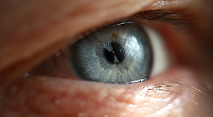 Na imagem aparece o close de um olho de cor azul, de uma pessoa idosa.