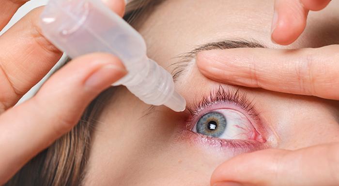 Close de uma mulher branca, abrindo um dos olhos com a ajuda dos dedos polegar e indicador para aplicar colírio, segurando o frasco do medicamento com a outra mão e aproximando do olho.
